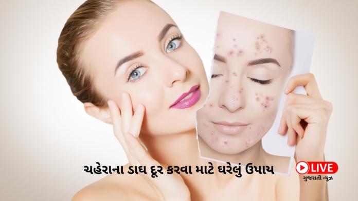 Pimple Kevi Rite Dur Karva ચહેરાના ડાઘ દૂર કરવા માટે 5 ઘરેલું ઉપાય
